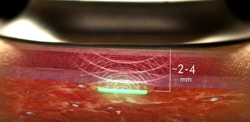 DARPA Invests $7.5 Million for Implantable Biosensor Tech