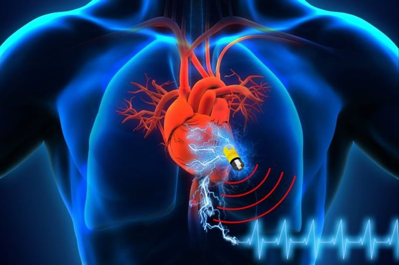 Battery-free implantable medical device powered by human body supercapacitor