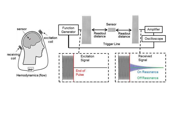 Implantable Electronics for Cerebral Aneurysm Monitoring